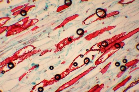 tejido: Foto del microorganismo aument� en 1000 en el microscopio