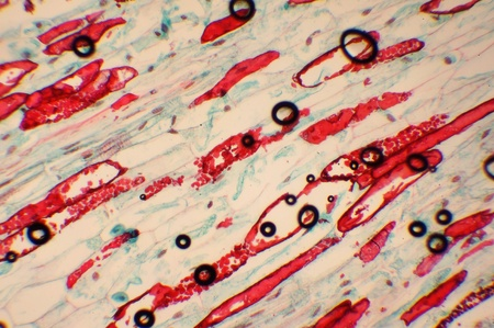 Photo of the microorganism increased in 1000 in the microscope photo