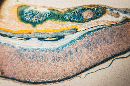 high scale: Structure and properties of cambial cells - observation in the microscope Stock Photo