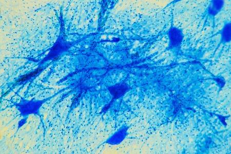 Wetenschap achtergrond-neuron weefsel. Zenuwvezels: motor neurous- studie met een grote toename van de structurele en functionele zenuwstelsel. Core cel lichaamsprocessen. Wetenschappelijke- ruggenmerg, spijsverteringsstelsel Stockfoto