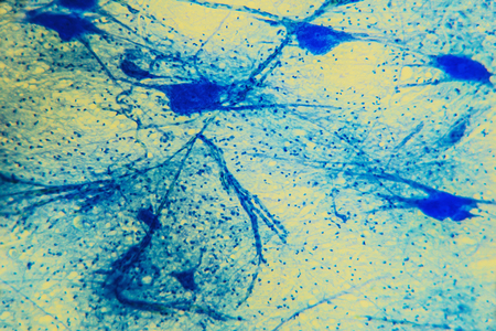Science background- neuron tissue. Nerve fibers: motor neurous- study with a large increase in the structural and functional nerve system. Core cell body processes. Scientific- spinal cord, digestive system Stock Photo