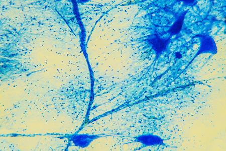 medula espinal: Ciencia del fondo tejido neurona. Las fibras nerviosas: estudio motor neurous- con un gran aumento en el sistema nervioso estructural y funcional. los procesos del cuerpo celular del núcleo. Científico de la médula espinal, el sistema digestivo Foto de archivo