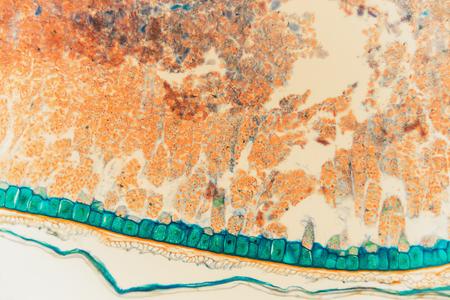 Weevil rye- biological prepared microscope slides