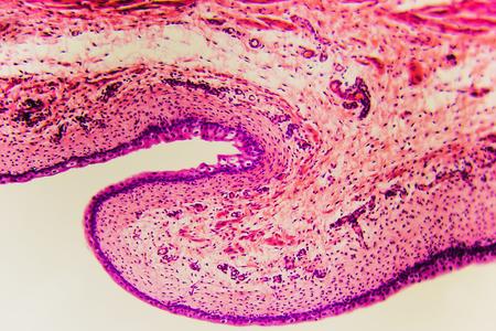 Biopsia: Anatomía médica Células de la vejiga del gato - fondo abstracto de la ciencia. Aprendizaje y enseñanza de la biología preparados diapositivas de microscopio. Preparación histológica - disección de tejido animal en capas delgadas con microtomo Foto de archivo