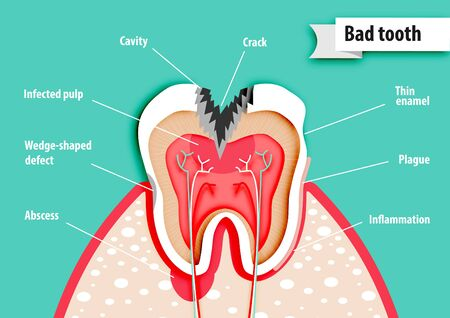 Paper art of health science about bad tooth vector Illustration