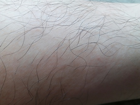 woman s leg has long hairy legs because hormones abnormal