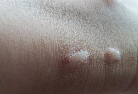 Scar on the asian womans heel, close up, skin care Stock Photo