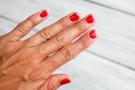 slatternly: The hand demanding manicure, nails with a bare varnish
