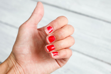 slatternly: Ugly nails with a bare red varnish Stock Photo