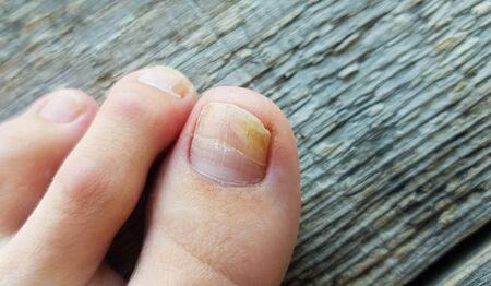 Close-up of a leg with a fungus on nails on a wooden background. Onycholysis: exfoliation of the nail from the nail bed.
