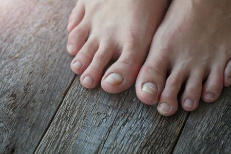 Close-up of legs with fungus on nails on wooden background. Onycholysis: exfoliation of the nail from the nail bed.