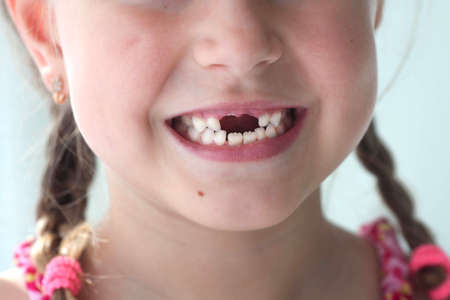 Close-up smile of a girl. A beautiful little girl 6-7 years old has lost milk teeth. Loss of milk teeth, replacement of permanent teeth. Children is dentistry. 版權商用圖片