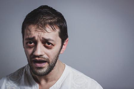 Ugly giovane uomo barbuto in cerca malato su sfondo grigio Archivio Fotografico