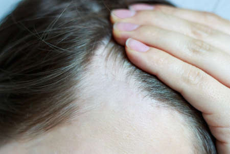 Girl touching her hair close-up, hair loss concept. Stock Photo