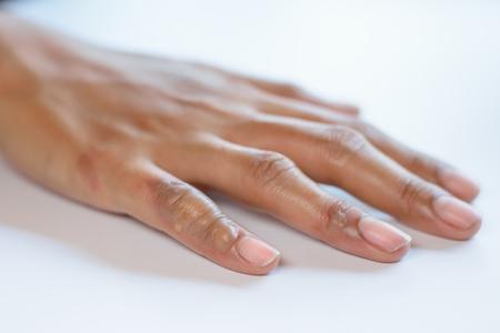 Horrible burns scald on female hand isolated on white
