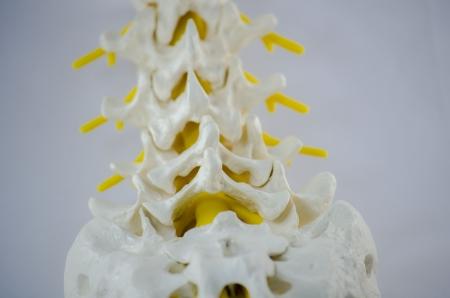 spinal disc herniation: low back model