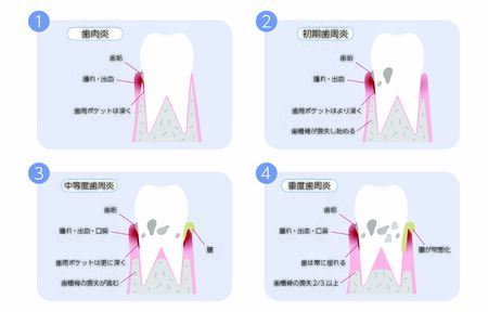periodontal disease progression, 4 stagesTranslation: Gingivitis, early periodontitis, moderate periodontitis, severe periodontitis