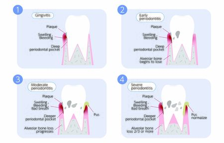 Periodontal disease disease, illustration 4 stages