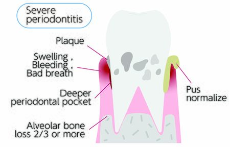 Illustration by stage of periodontal disease: severe periodontitis