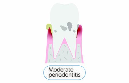 Illustration by stage of periodontal disease: moderate periodontitis