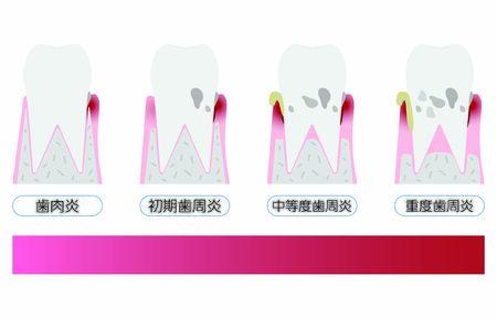 Illustration by stage of periodontal disease: order of progressTranslation: Gingivitis, earlyperiodontitis, moderate periodontitis, severe periodontitis