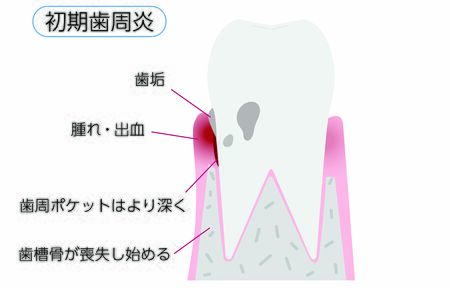 Illustration by stage of periodontal disease: early periodontitisTranslation: Early periodontitis, plaque, swelling / bleeding, deeper periodontal pockets, and loss of alveolar bone