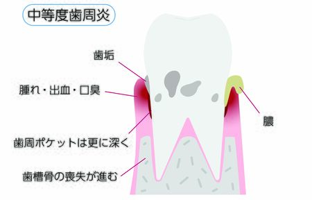 Illustration by stage of periodontal disease: moderate periodontitisTranslation: moderate periodontitis, plaque, swelling / bleeding / bad breath, deeper periodontal pockets, progressive loss of alveolar bone, pus
