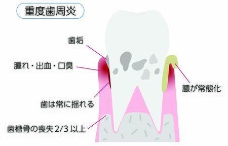Illustration by stage of periodontal disease: severe periodontitisTranslation: Severe periodontitis, plaque, swelling / bleeding / bad breath, teeth constantly shaking, loss of alveolar bone more than than 2/3, pus normalization