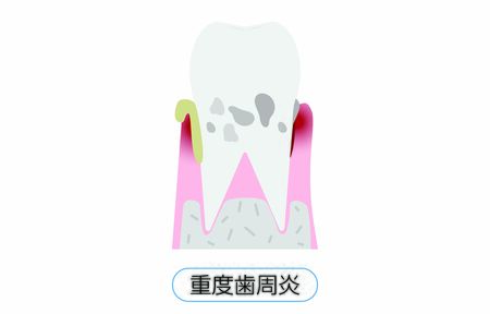 Illustration by stage of periodontal disease: severe periodontitisTranslation: severe periodontitis