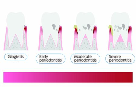 Illustration by stage of periodontal disease: order of progress