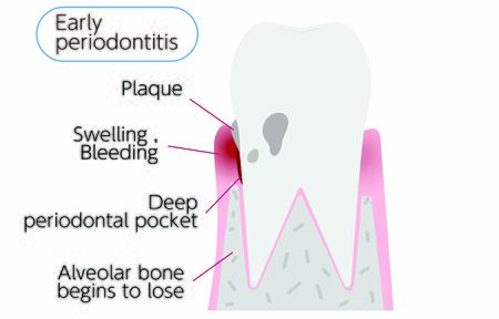 Illustration by stage of periodontal disease: early periodontitis