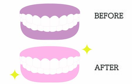 Aesthetic dentistry, illustration of white teeth and pink gums, white teeth and dark gums