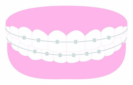 Illustration of esthetic dentistry and orthodontics: beautiful teeth arrangement and metal bracket