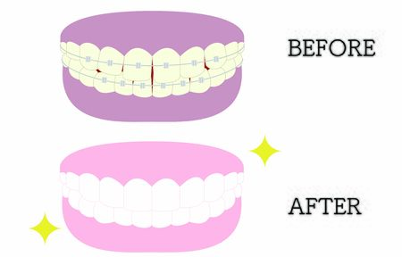 Cosmetic dentistry, orthodontic illustrations: distorted and beautiful tooth alignment, from yellowing and gingival pigmentation to white teeth 写真素材 - 145783211