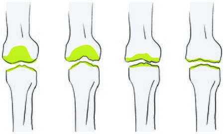 Vector illustration of the flow of osteoarthritis of the knee is worse