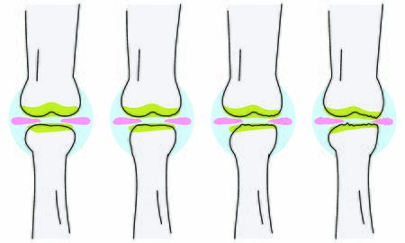 Vector illustrations with osteoarthritis of the knee will wear out the meniscus