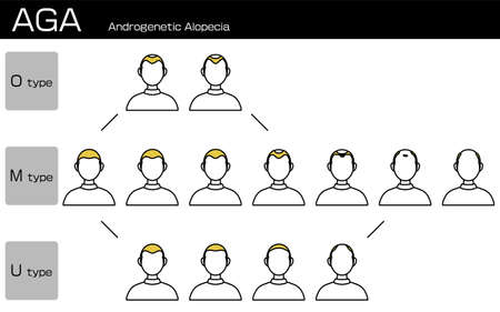Illustration of each type of AGA androgenetic alopecia and progress stage