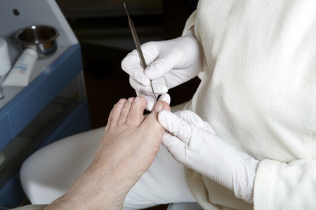 medical foot care
