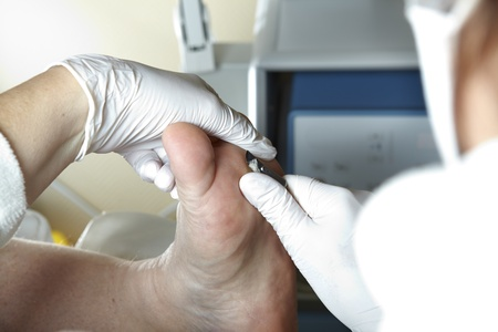 A PODIATRIST WORKS WITH A SCALPEL Stock Photo - 12165062