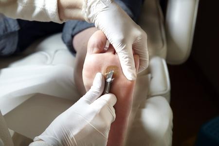 A podiatrist works with scalpel Stock Photo