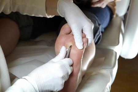 A Podiatrist works with a scalpel Stock Photo