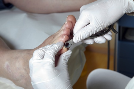 A Podiatrist cut the toenails on of a women