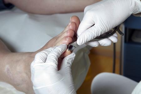 A Podiatrist cut the toenails on of a women