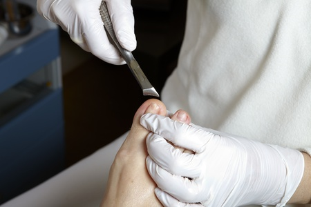 A podiatrist edited the toenails with a nail scissors photo
