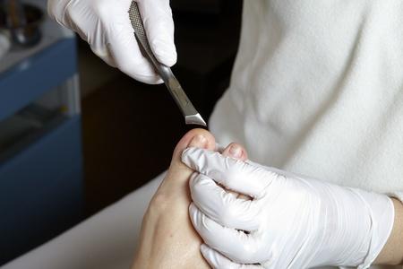 A podiatrist edited the toenails with a nail scissors photo