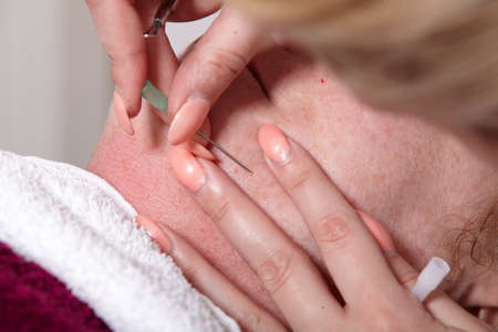 Beautician removed at a customer in a beauty salon skin blemishes photo