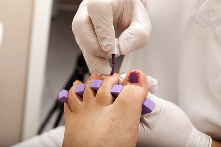 u�as pintadas: Deje las u�as a pintar a chiropodist