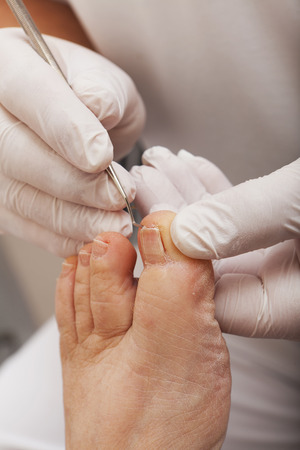 chiropodist: A chiropodist works with a Toenail Lifter Stock Photo