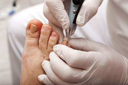 Medical foot care with grinding machine Stock Photo