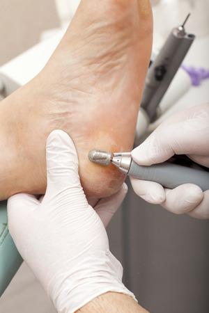 chiropodist: A chiropodist taking care of woman